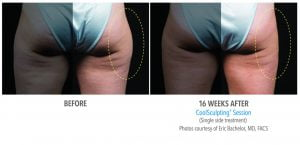 Outer Thigh Single Side Treatment