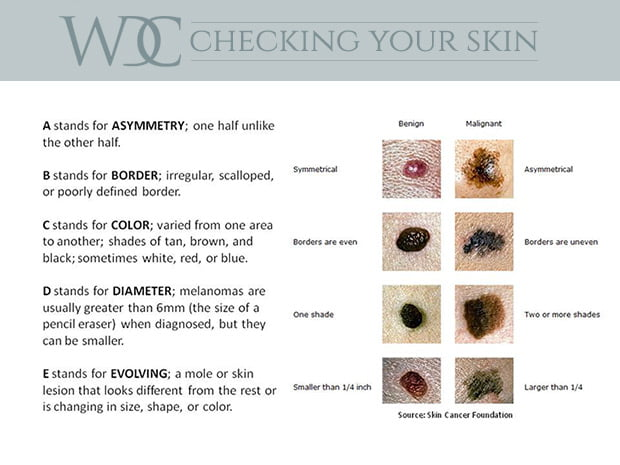 Different types of moles on skin was specially