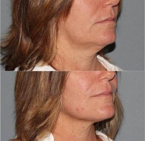 Non-Invasive Lift Options for the Face- Lunch & Learn